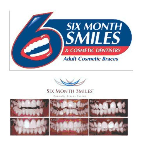 Sixmonth Smile